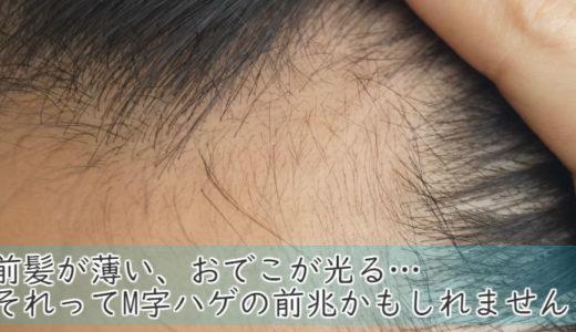 前髪が薄い、おでこが光る…それってM字ハゲの前兆かもしれません