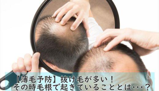抜け毛が多い原因とは?その時毛根で起きていることとは・・・?